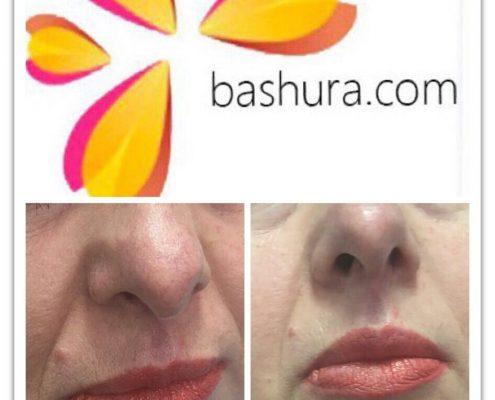 губы до и после гиалуроновой кислоты фото