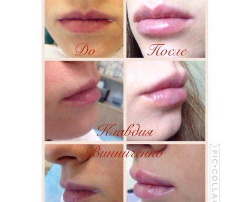 губы гиалуроновая кислота фото до и после